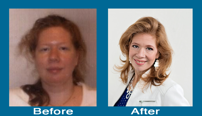 Before and After Fibromyalgia energy Get More Energy Naturally Before and After